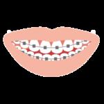 歯列矯正の開始時期はいつから?大人と子どもの治療では何が違う?